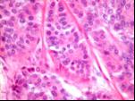 benigen tumor